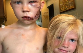 Viral: Boy got 90 stitches after protecting sister from dog attack [Marvel heroes commented]
