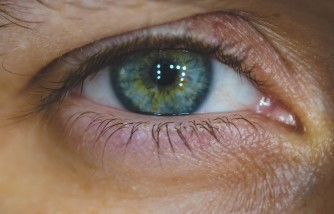 How to Treat Pink Eye: Home Remedies That Are Easy to Find