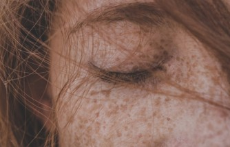 What Is Medication-Induced Skin Hyperpigmentation?