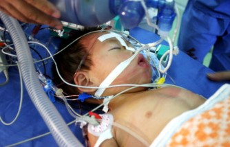 QingQing Undergoes Surgery To Remove Third Leg