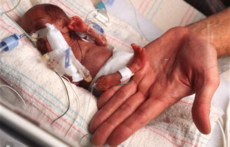World's Smallest Surviving Baby Makes First Public Appearance