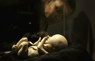 'Body Worlds' Displays Cadavers As Educational Art