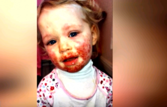 Mom of Girl Stricken With Severe Case of Herpes Says Daughter Finally Recovering