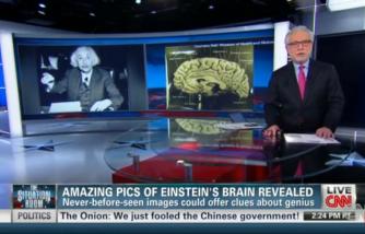 Images of Einstein's brain revealed