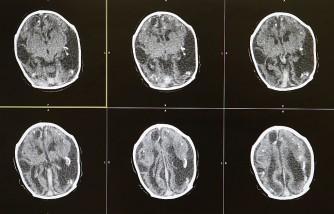 Triplets With Craniosynostosis