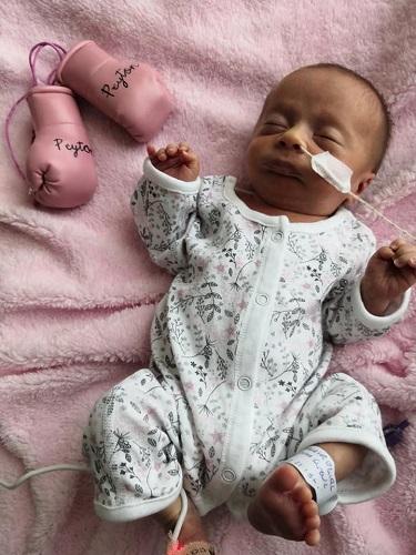 Coronavirus vs Premature Baby: Can You Guess Who Won?